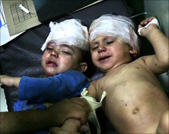 """Hay niños que """"se salvan"""" sus familias, no. Los heridos quedan con secuelas de por vida, a veces minusválidos."""